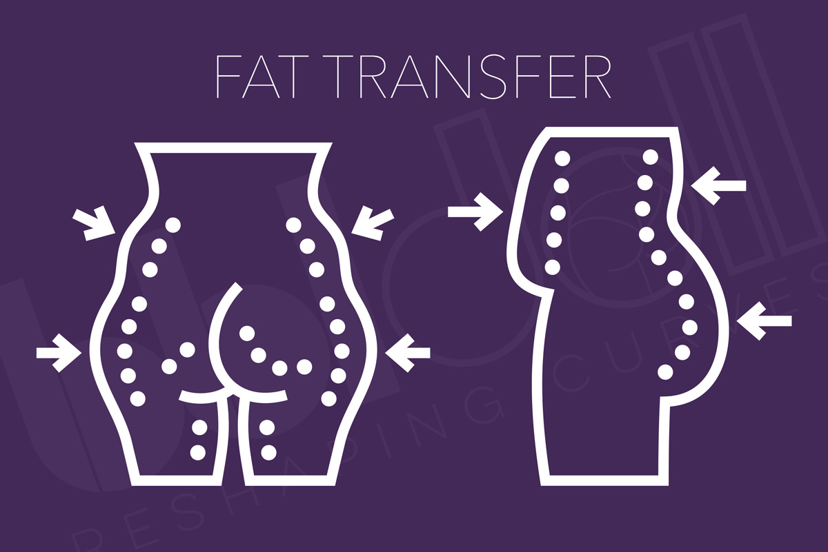 Fat Transfers for Plastic Surgery Procedures