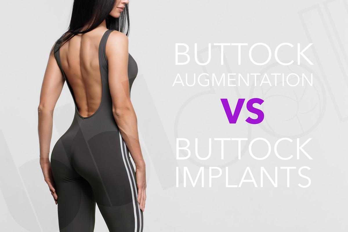 Buttock Augmentation – Fat Transfer vs. Buttock Implants
